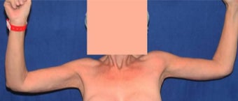 25-34 year old woman treated with Arm Lift after 3136538