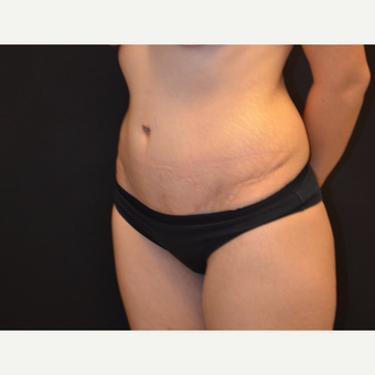 35-44 year old woman , Abdominoplasty Surgery after 2960481