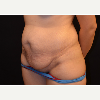 35-44 year old woman , Abdominoplasty Surgery before 2960481