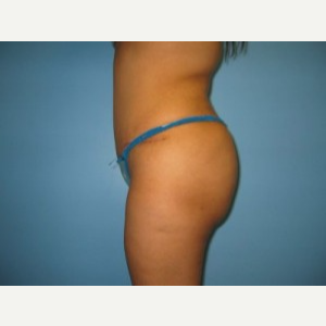 Tummy Tuck after 3665643