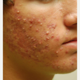18-24 year old man treated with Acne Treatment before 3447394