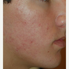 18-24 year old man treated with Acne Treatment after 3447394