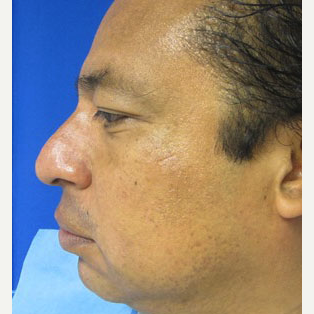 Chin Implant before 3141714
