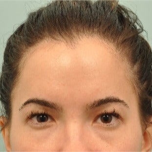 25-34 year old woman treated with Eyelid Surgery before 2207810