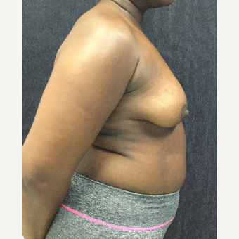35-44 year old woman treated with Breast Lift with Implants before 3219468