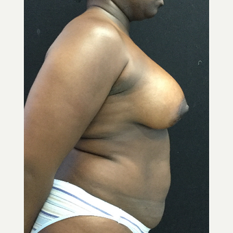 35-44 year old woman treated with Breast Lift with Implants after 3219468