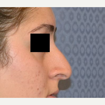 18-24 year old woman treated with Rhinoplasty before 3816647