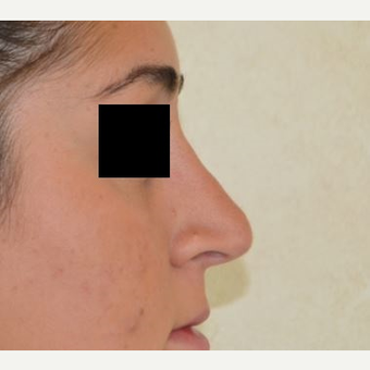 18-24 year old woman treated with Rhinoplasty after 3816647