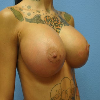 Breast Augmentation, Breast Implants 1085231