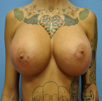 Breast Augmentation, Breast Implants after 1085231