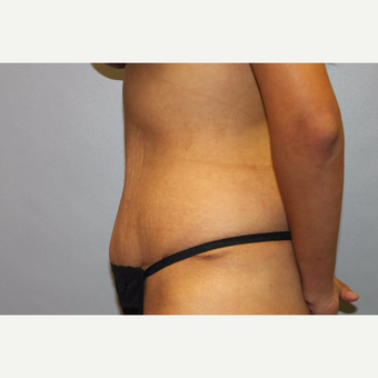 25-34 year old woman treated with Tummy Tuck after 3529337