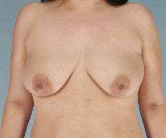 Breast Lift with Implants before 3033011
