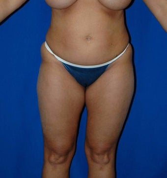 45-54 year old woman treated with SAFELipo before 3126146