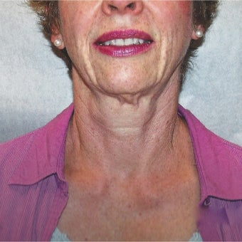 55-64 Year Old Female Treated With Botox To Tighten Neck And Jowls before 2047287
