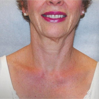 55-64 Year Old Female Treated With Botox To Tighten Neck And Jowls after 2047287
