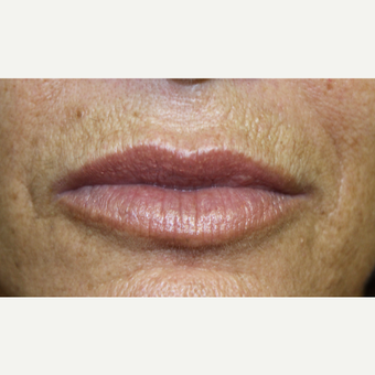 55-64 year old woman treated with Lip Augmentation after 3385752