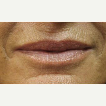 55-64 year old woman treated with Lip Augmentation before 3385752