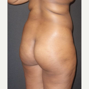 18-24 year old woman treated with Brazilian Butt Lift before 3457998
