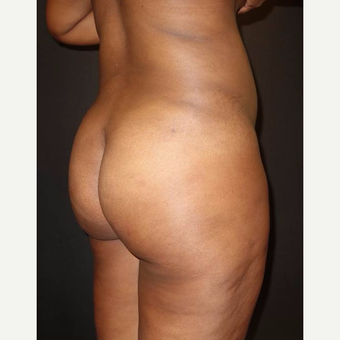 18-24 year old woman treated with Brazilian Butt Lift after 3457998