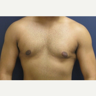 18-24 year old man treated with Male Breast Reduction after 3109273