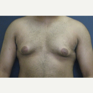 18-24 year old man treated with Male Breast Reduction before 3109273