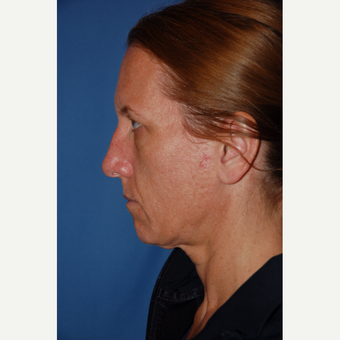 35-44 year old woman treated with Facelift before 3610228