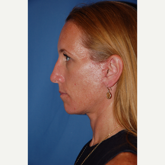 35-44 year old woman treated with Facelift after 3610228