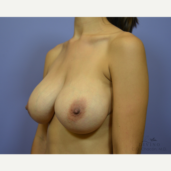25-34 year old woman treated with Breast Implant Revision after 3415851