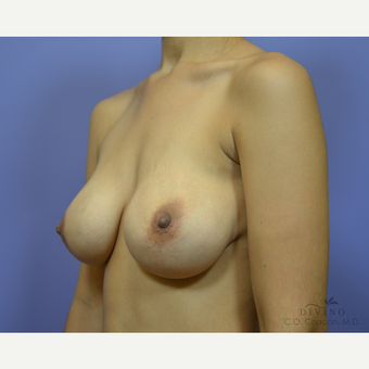 25-34 year old woman treated with Breast Implant Revision before 3415851