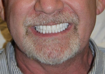 All-on-4® Dental Implants  after 1414838