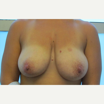 Breast Lift before 3136845