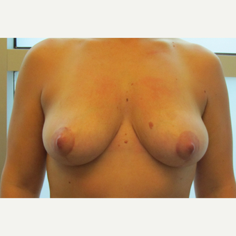 Breast Lift after 3136845