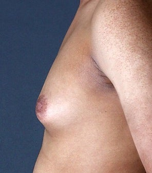 35-44 year old man treated with Gynecomastia before 3126989