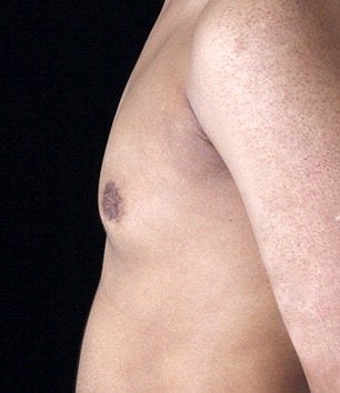 35-44 year old man treated with Gynecomastia after 3126989
