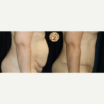 35-44 year old woman treated with Tummy Tuck after 3283507