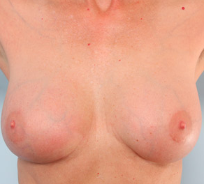 Breast Augmentation 917991