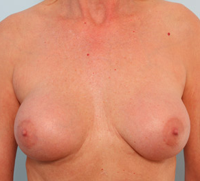 Breast Augmentation before 917991