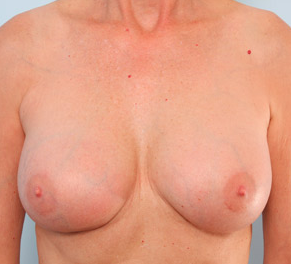 Breast Augmentation after 917991