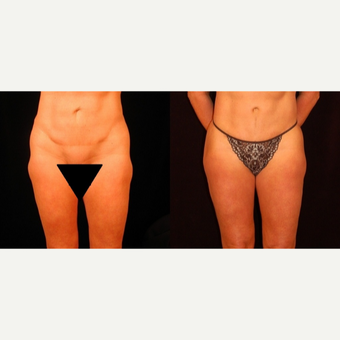 35-44 year old woman treated with Thigh Lift before 3811282
