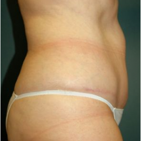 Tummy Tuck after 3720562