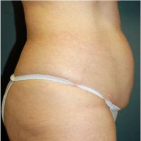 Tummy Tuck before 3720562