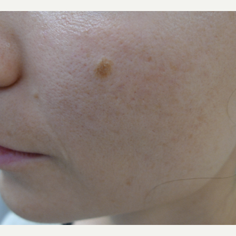 Dark acne scars called PIH treated with lasers after 3084556