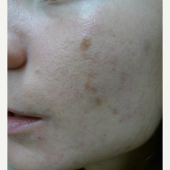 Dark acne scars called PIH treated with lasers before 3084556