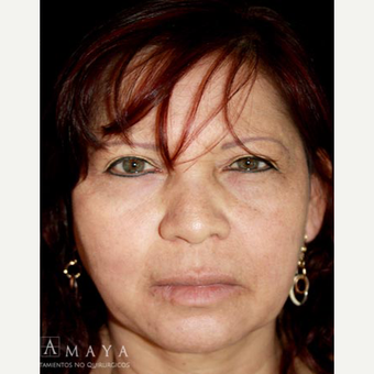 35-44 year old woman treated with Skin Rejuvenation after 3417653