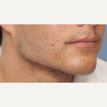 25-34 year old man treated with Chin Implant after 3316791