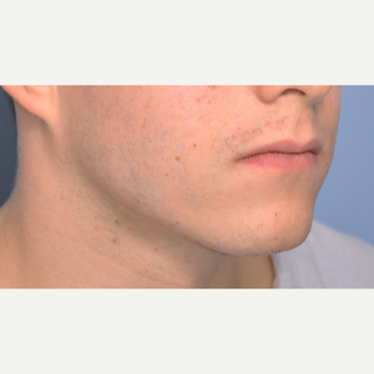 25-34 year old man treated with Chin Implant before 3316791