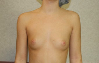 18-24 year old woman treated with Breast Implants before 3499802
