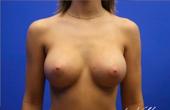 18-24 year old woman treated with Breast Implants after 3499802