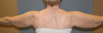 Arm treated with liposuction and ThermiRF skin tightening before 2011289