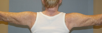 Arm treated with liposuction and ThermiRF skin tightening after 2011289
